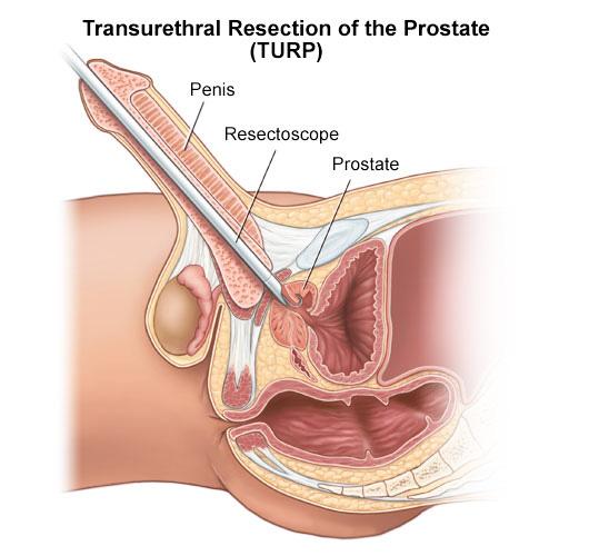 zatrzymanie moczu po operacji prostaty